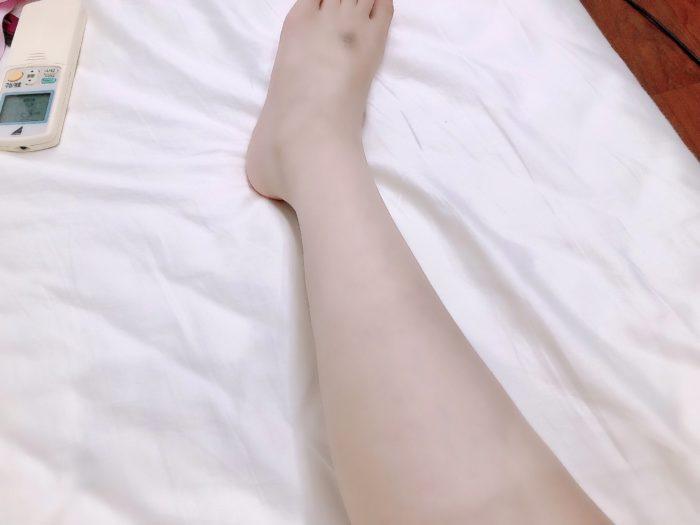 むにちゃんとマイコの怪我の足・・汗